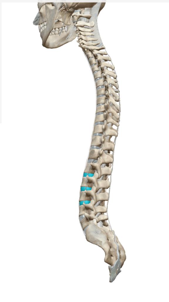 腰椎,椎間板,ヘルニア