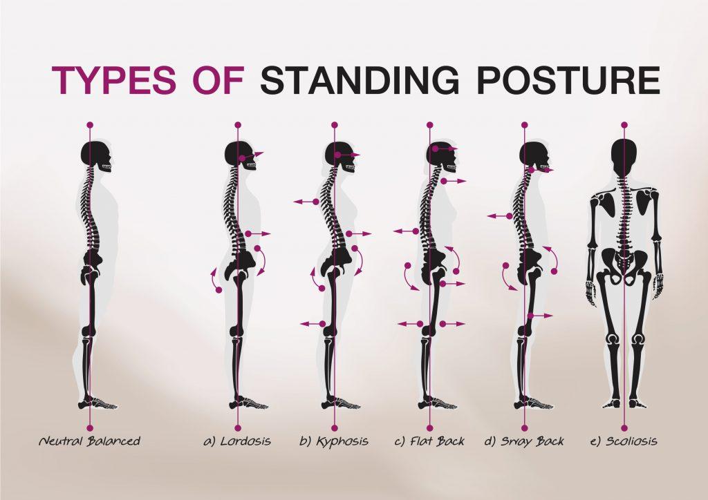 姿勢,筋肉