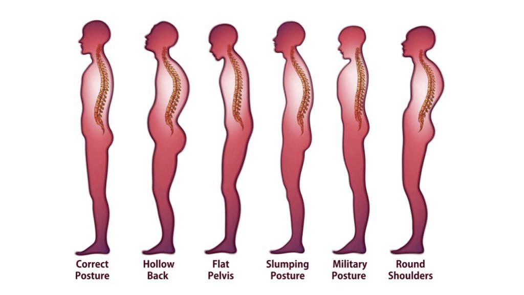 おしりの筋肉を鍛えると姿勢改善効果も期待!